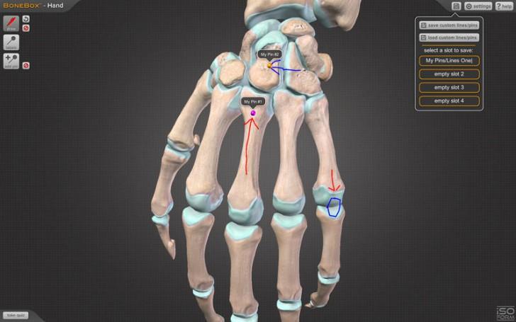 โปรแกรมดูข้อต่อกระดูกมือ BoneBox Hand Viewer