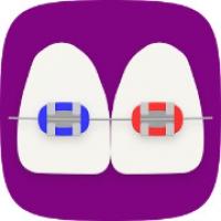 BraceMate (App ไอเดียเลือกสียางจัดฟัน ในการดัดฟัน)